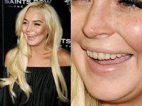 1318524824_lindsay-lohan-teeth-article