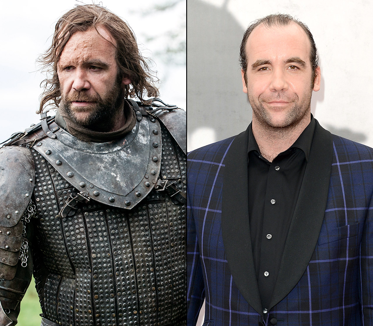 Is he good, is he bad, does the scary scar exist in real life? Sandor Clegane, nicknamed The Hound on the hit series, is known for his brutality in service to the Lannisters.