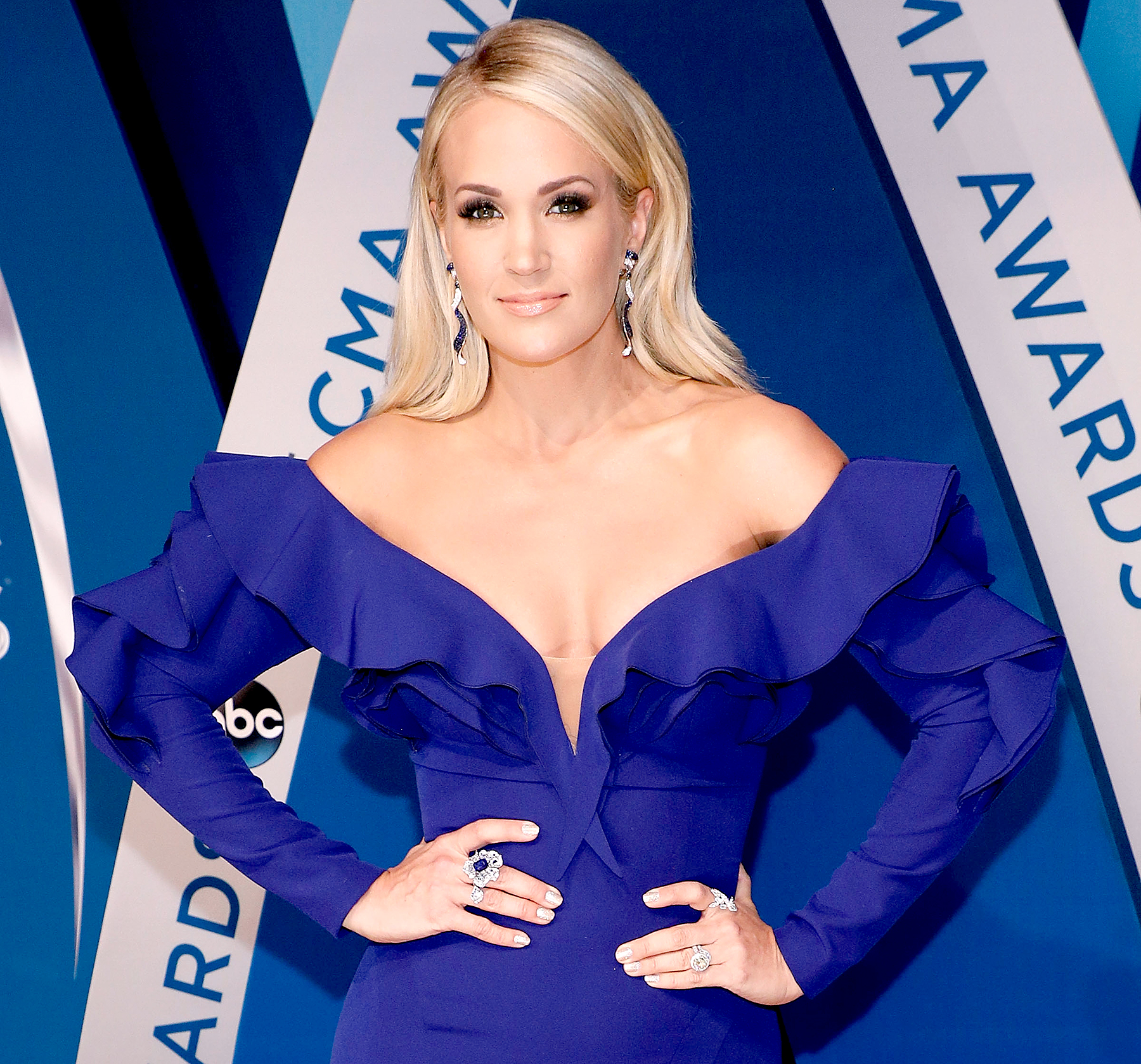Carrie Underwood Gives X-RAY-ted Injury Update!
