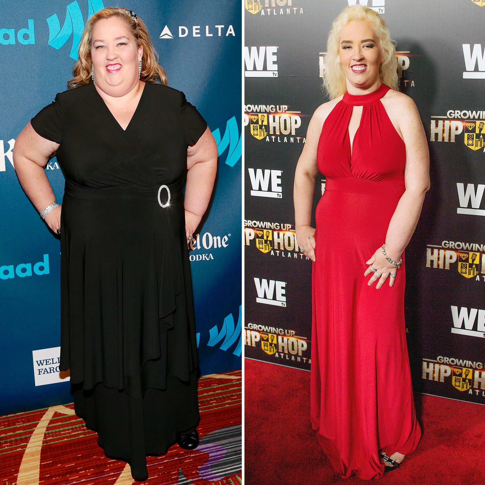 weight loss and topiramate