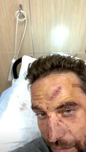 TJ-Lavin-Injured-in-BMX-Jump-stitches