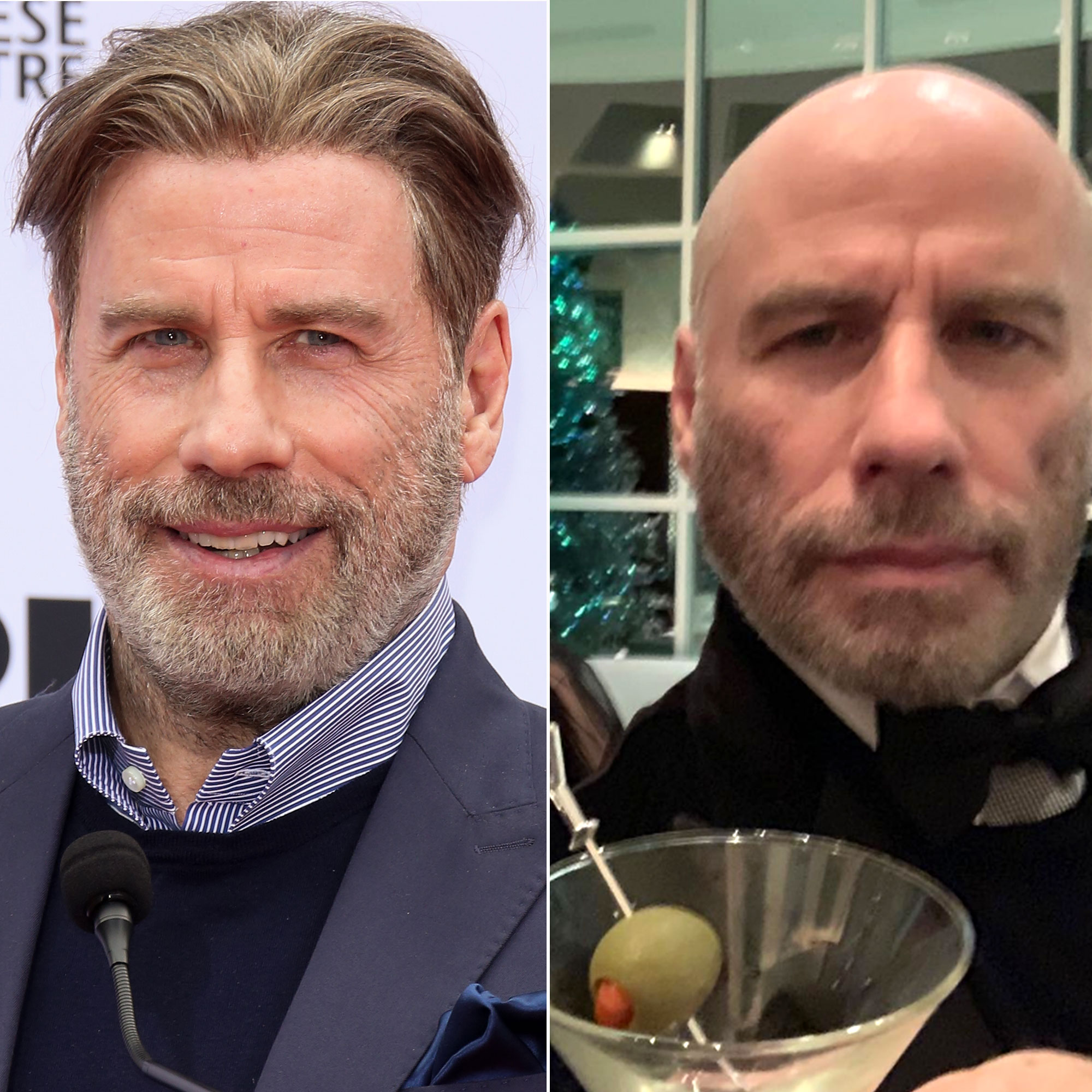 Celebrity Hair Transformations of 2019 - Talk about a transformation! The Grease star casually showed off his new bald style with an Instagram post on Sunday, January 6.
