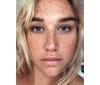 kesha-freckles-no-makeup