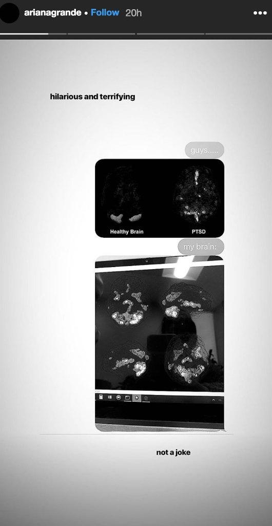 Ariana Grande Brain Scans Instagram Story