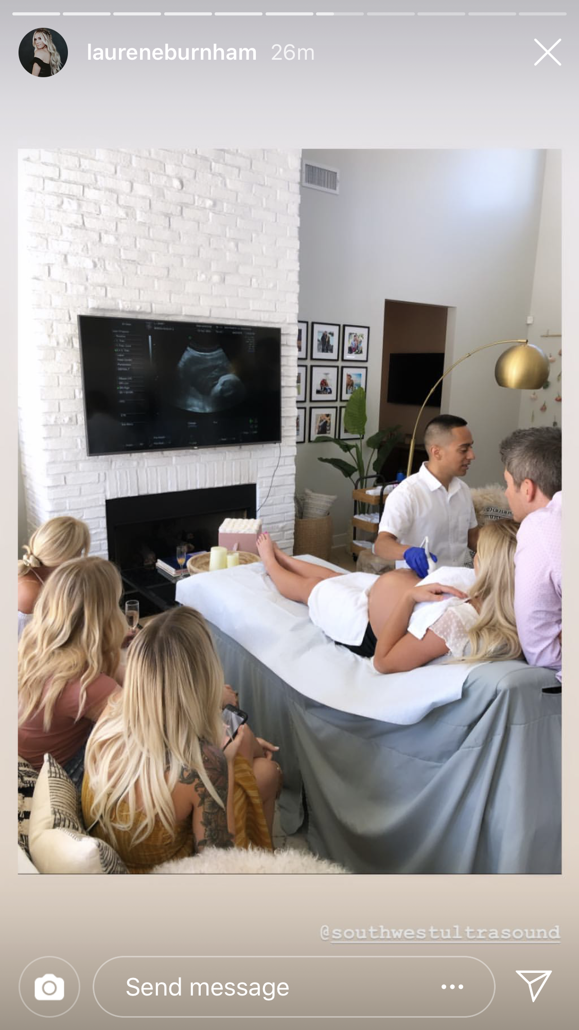 Arie Luyendyk Jr., Lauren Burnham Celebrate Baby Shower, Complete With Ultrasound Machine - Lauren had an ultrasound in her living room while Arie stood behind her.