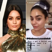 Vanessa Hudgens Shows Off What a Good Facialist Can Do for Your Skin