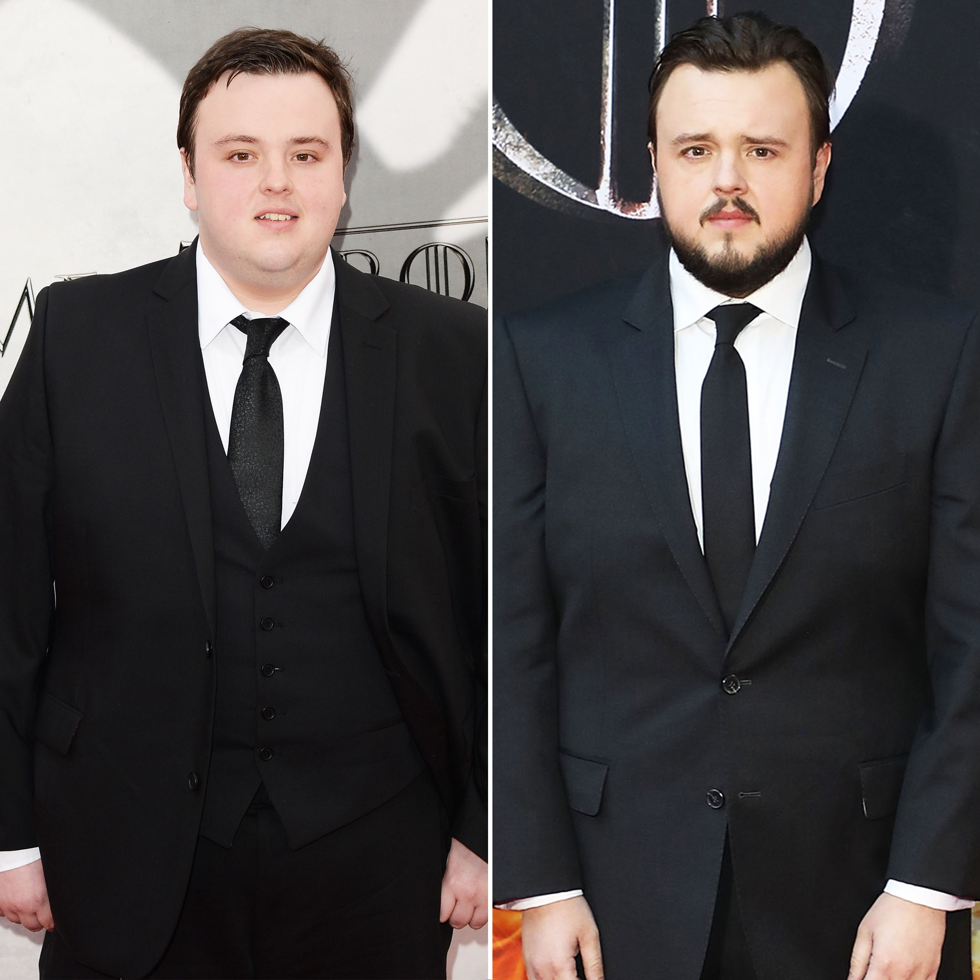 John Bradley 'Game of Thrones' Stars: From the First 'GoT' Red Carpet Premiere to the Last - Jon Snow's BFF has been a beloved by fans since the series' fourth episode. While his style has basically stayed the same, his face has certainly matured.