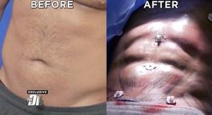 Ronnie Ortiz Magro Liposuction