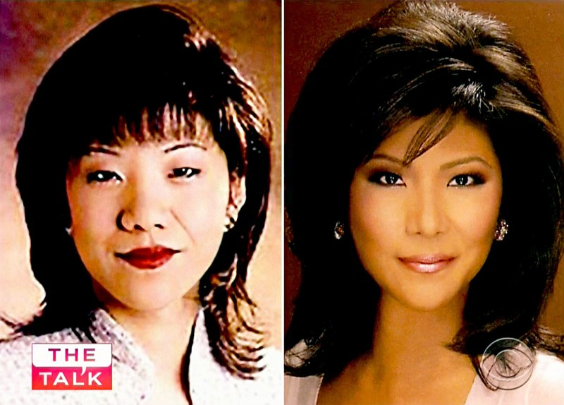 Celebrities Speak Out About Plastic Surgery: Before, After Pics