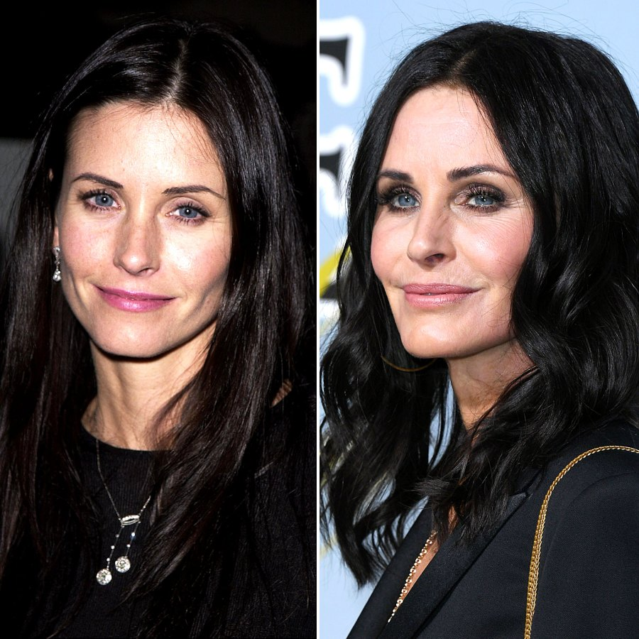 plastic surgery celebs before after