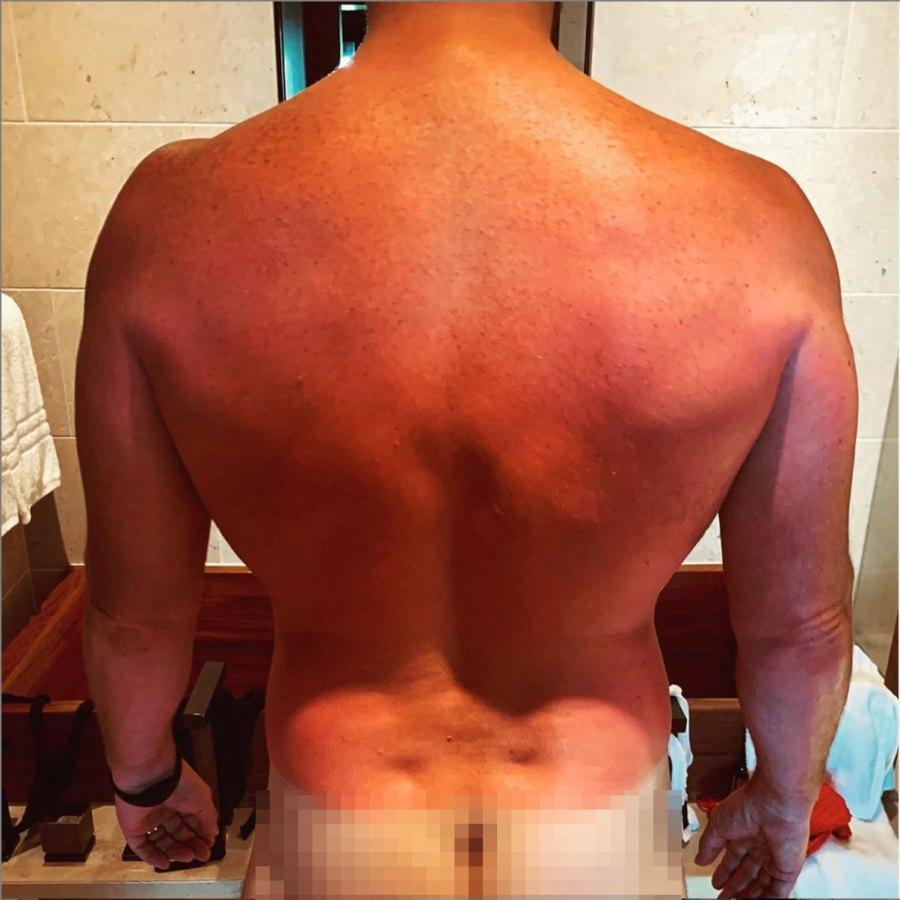 Chris Pratt Instagram Sun Burn