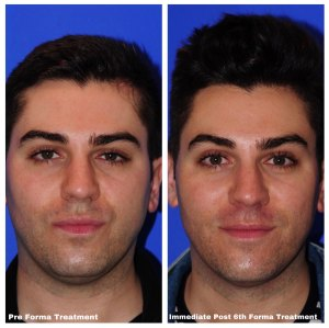 Marc Before & After Facial