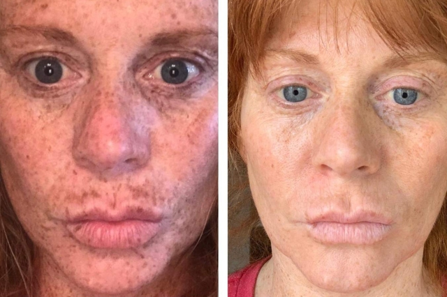 This Dark Spot Serum Has Over 4,000 Shoppers Posting Insane Before-and-After Photos