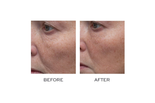 According to Reviewers This is 'The Only Product to Ever Work' When Looking to Eliminate Wrinkles!