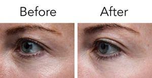 Pronexa Lavish Eyes Anti-Aging Eye Serum Before And After