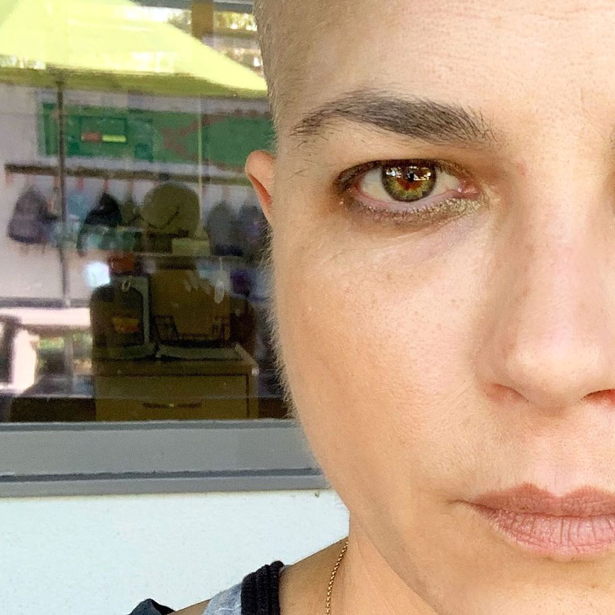Selma Blair Says Peach Fuzz Is a 'New Development' on Her Face