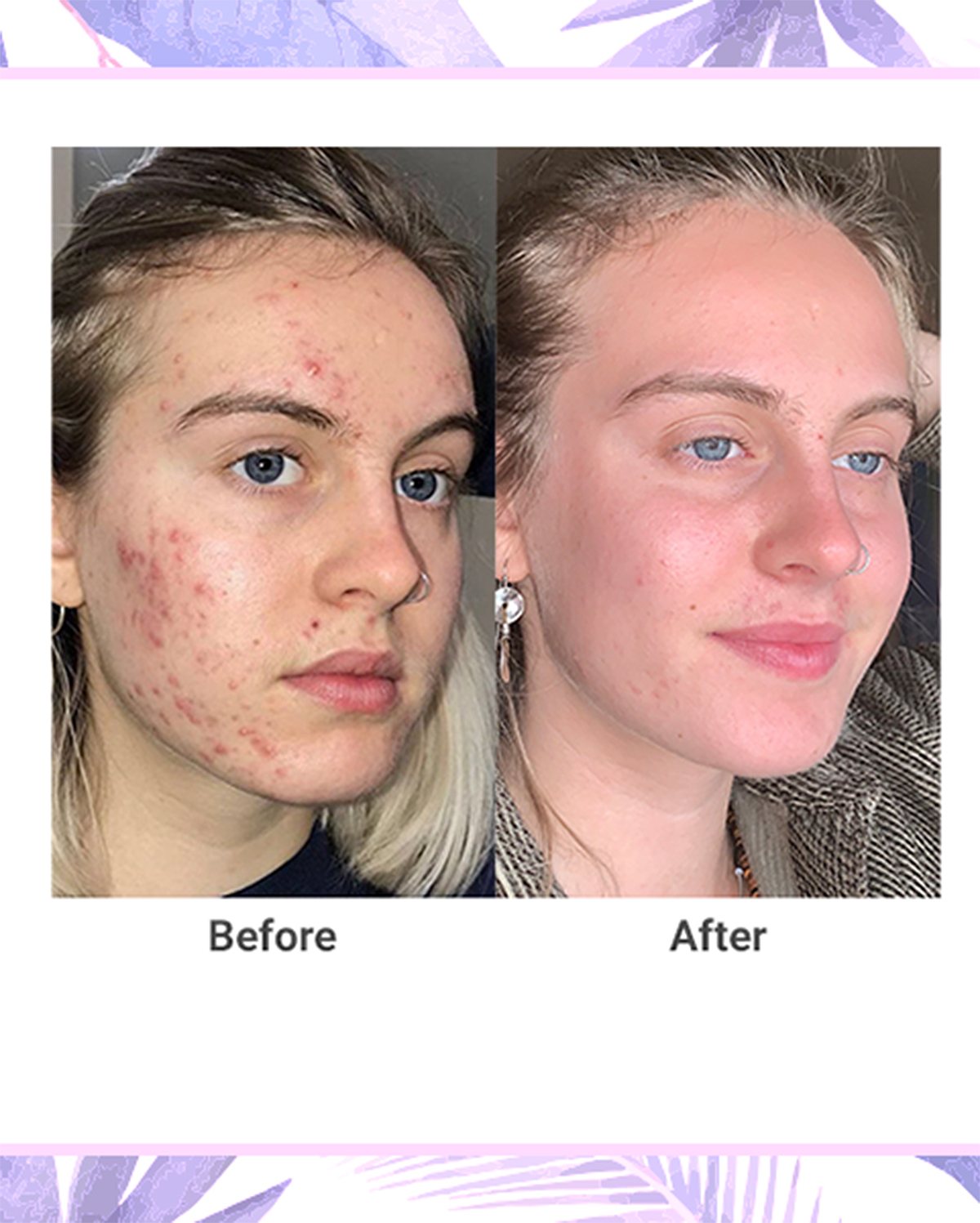 NxN Acne Treatment 4-Step Clear Skin System