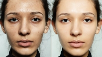 Before and After Skincare Black Friday