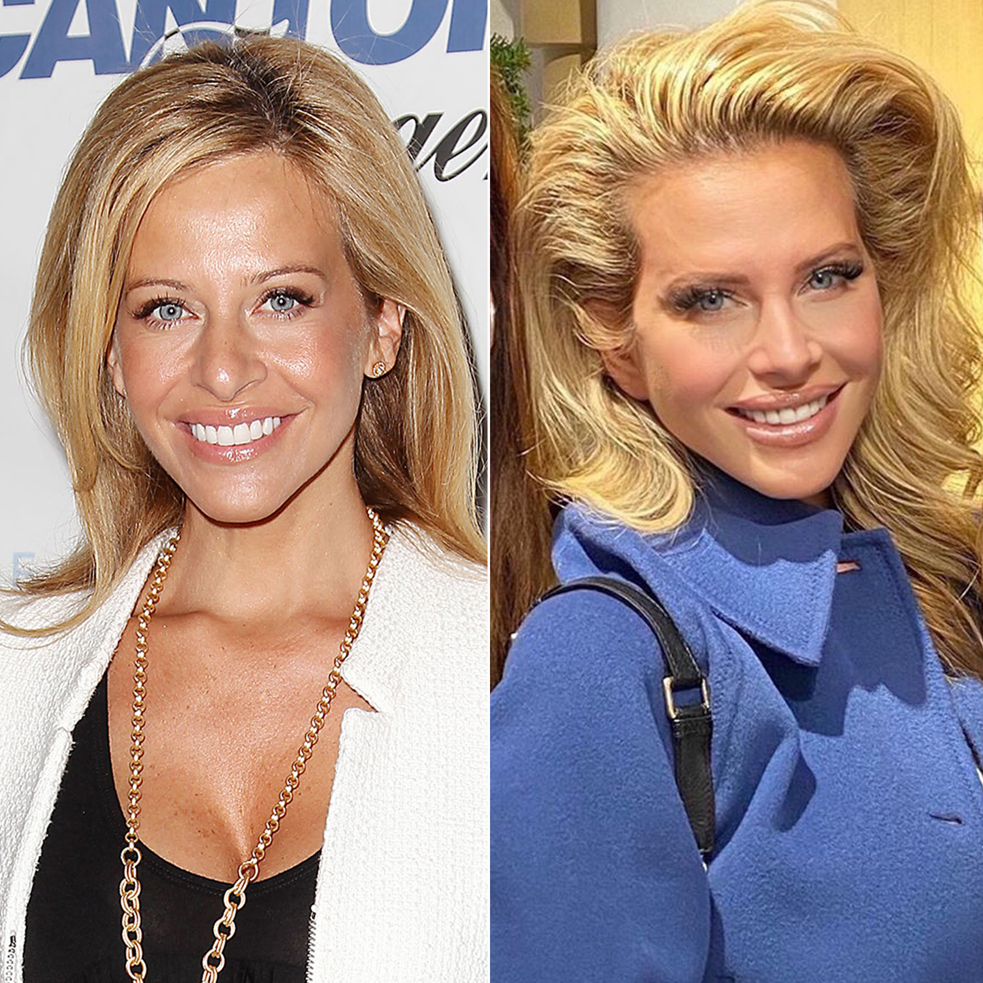 Celebrities Speak Out About Plastic Surgery Before After Pics