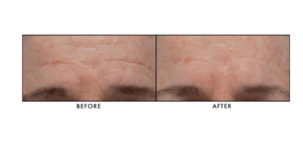 Lancer Skincare The Method: Normal-Combination Skin, 3-Piece Kit