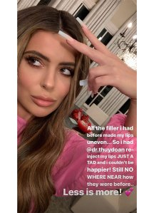 Brielle Biermann Lip Fillers Selfie Instagram