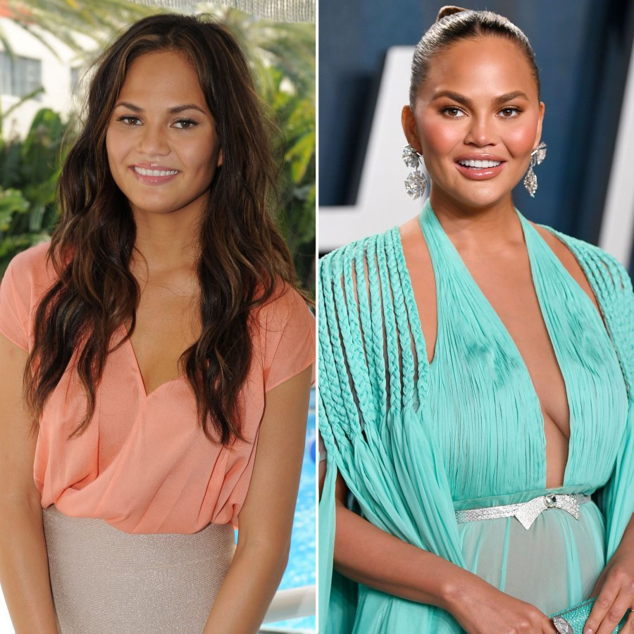 Chrissy Teigen Stars Who Admitted to Getting Plastic Surgery