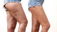 Cellulite Legs Jeans Before and After