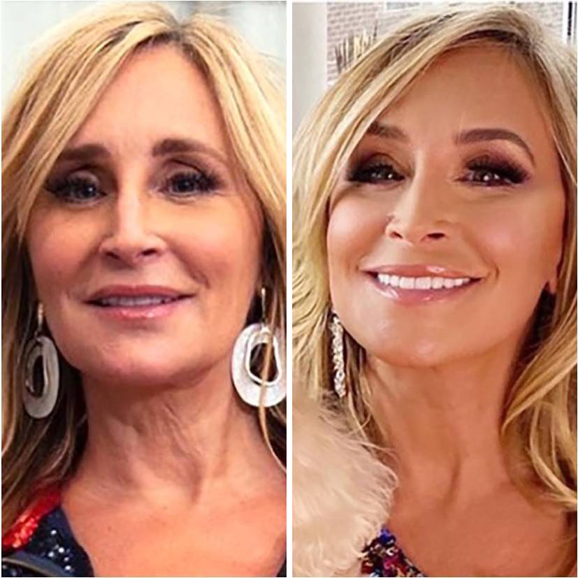 Sonja Morgan plastic surger before and after