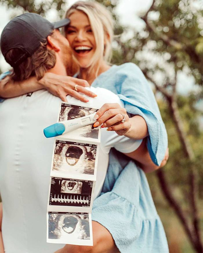 DWTS Witney Carson Is Pregnant Expecting 1st Child With Carson McAllister