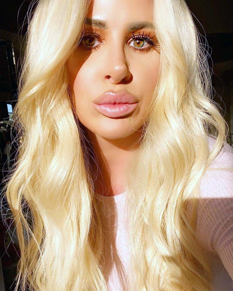 The Evolution of Kim Zolciak's Beloved Lip Fillers: Pics