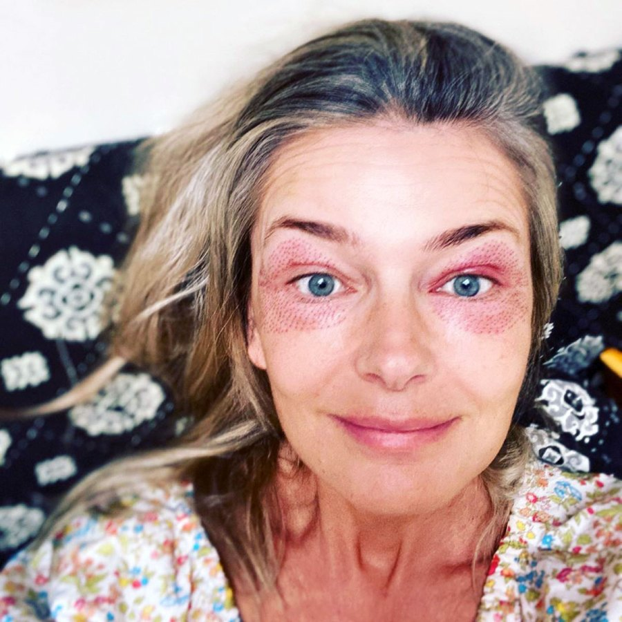 Paulina Porizkova Looks 'Freaky' After Getting 2 Skin Treatments
