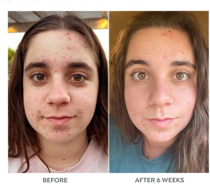 Dr. Zenovia Skincare 5% Benzoyl Peroxide Acne Spot Treatment