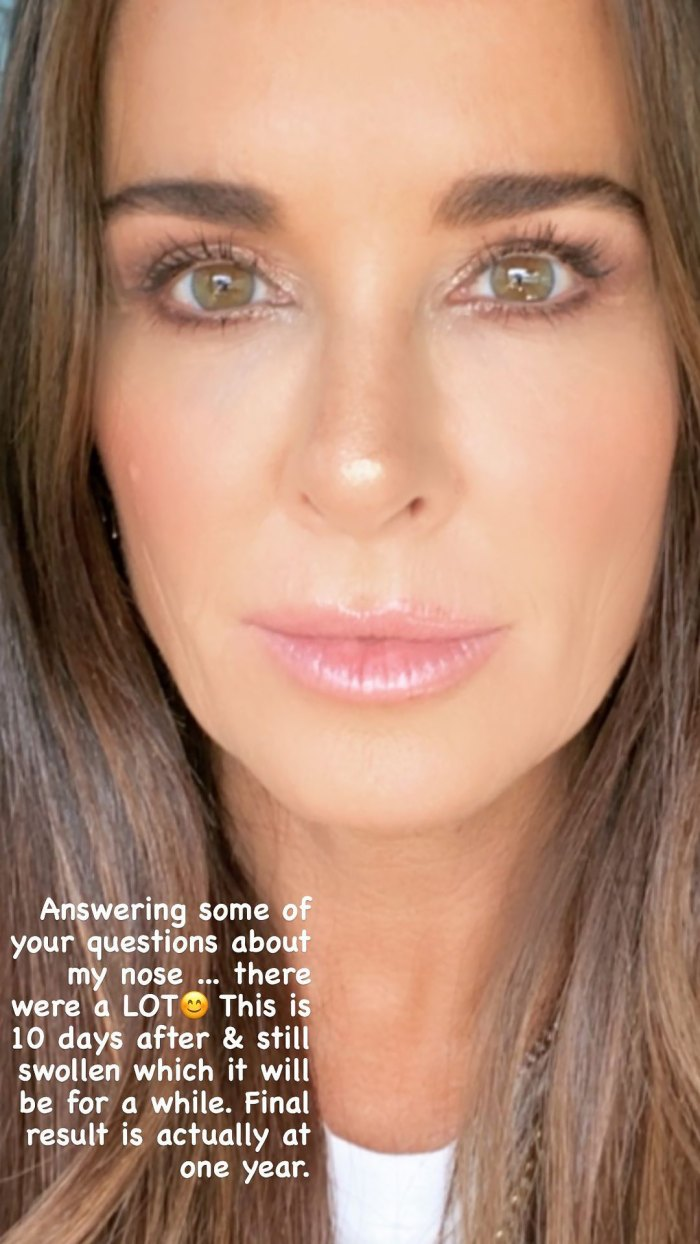 Kyle Richards Opens Up About Her New Nose After Plastic Surgery