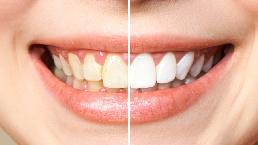before-after-teeth-whitening-stock-photo