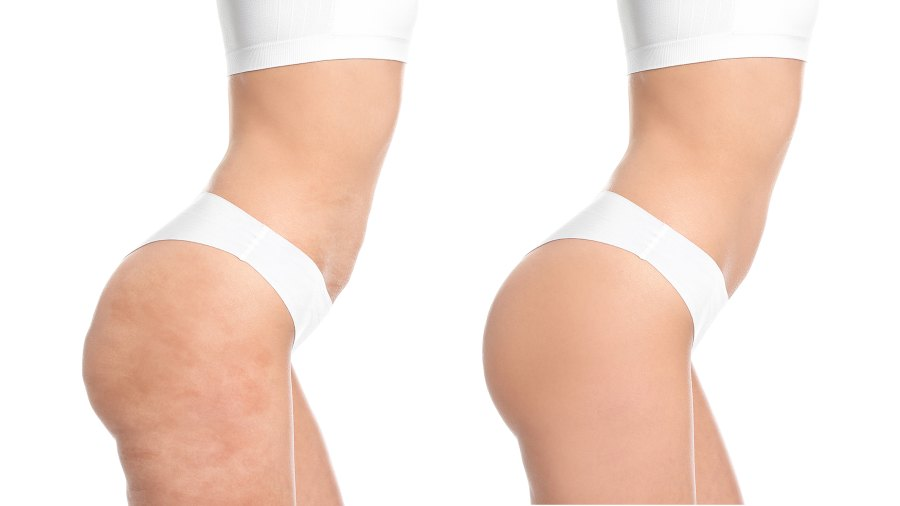 before-after-cellulite