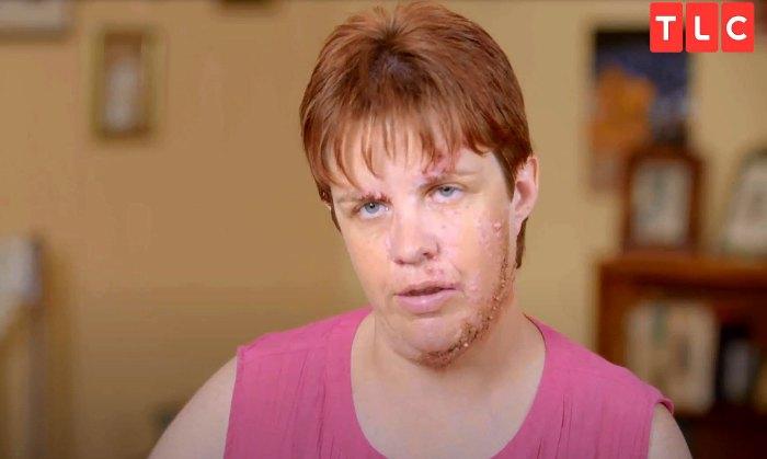 Dr Pimple Popper adelanto de Monica Lost Dream Job debido a su marca de nacimiento