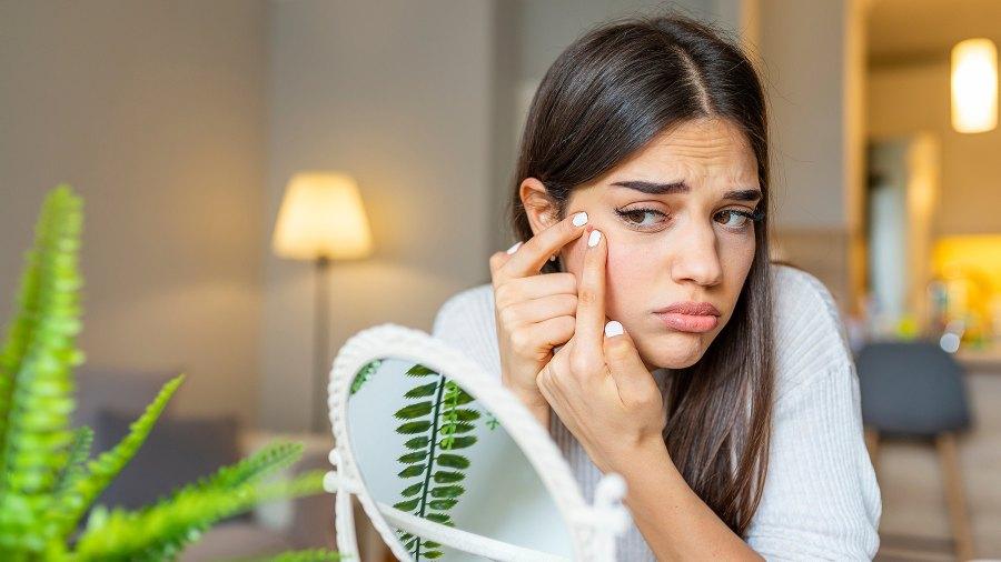 acne-dots