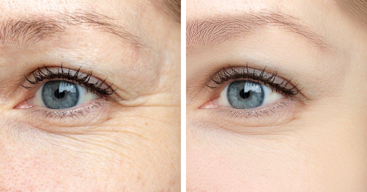 before-after-eye-wrinkles-serum-cream.jpg?w=1200&h=630&crop=1&quality=86&strip=all