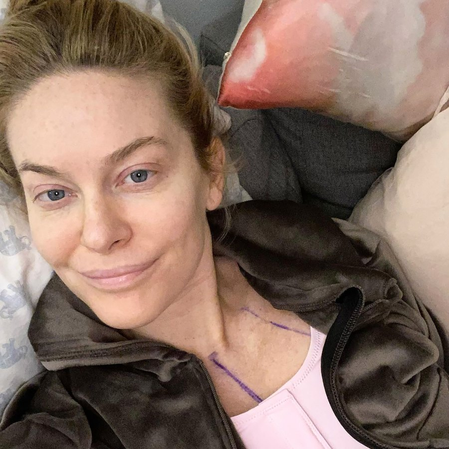 Leah McSweeney Celebs Who Admitted They Got Plastic Surgery