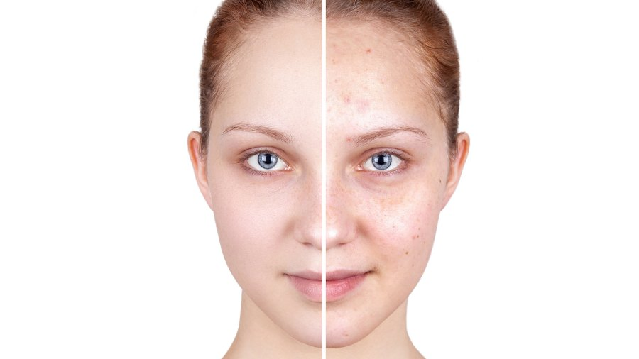 Before-and-After-Skincare-Stock-Photo