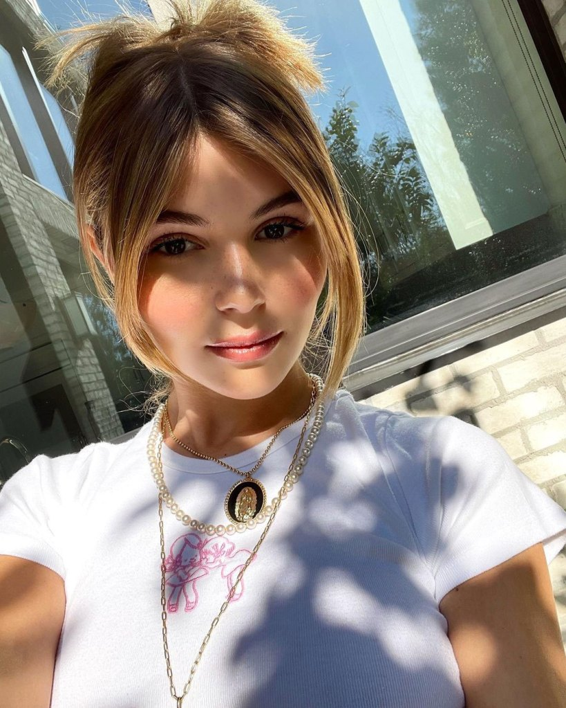 Olivia Jade Shows Off Her Injuries After Fainting Incident