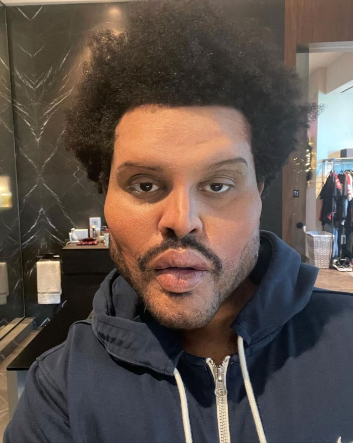 The Weeknd Face Appears Normal After Plastic Surgery Speculation