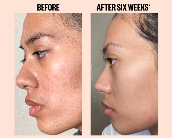 Suero para el tratamiento del acné