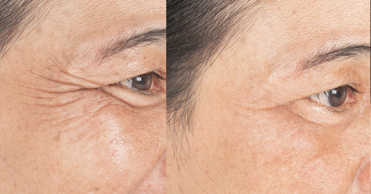 Say Goodbye to Crow's Feet With This Eye Lifting Serum.jpg