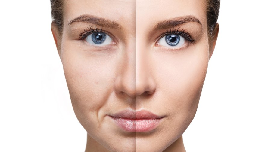 Dull-Skin-Before-After-Stock-Photo