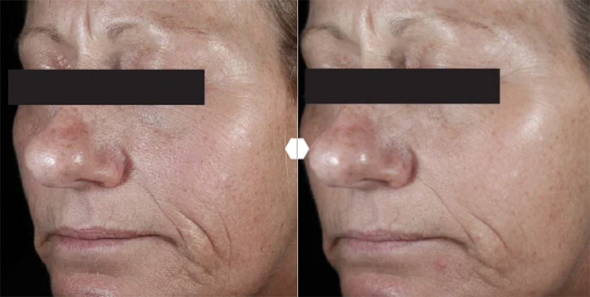 c-e-ferulic-before-after