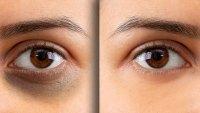 dark-circle-before-after