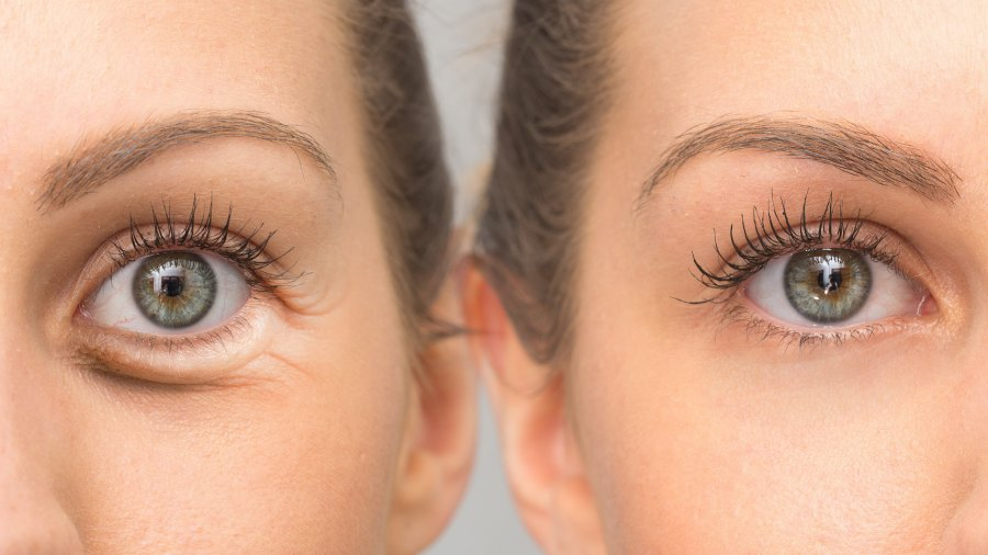 Before-After-Eye-Cream-Stock-Photo