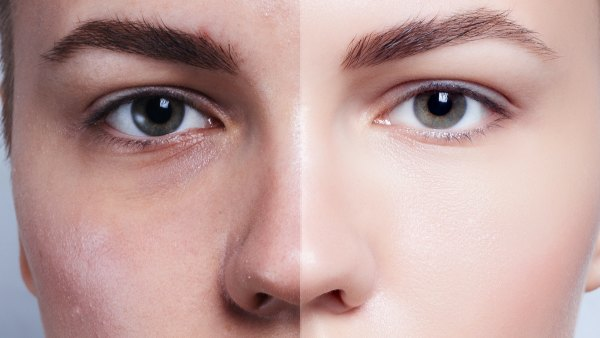 Before-After-Glowing-Skin-Stock-Photo
