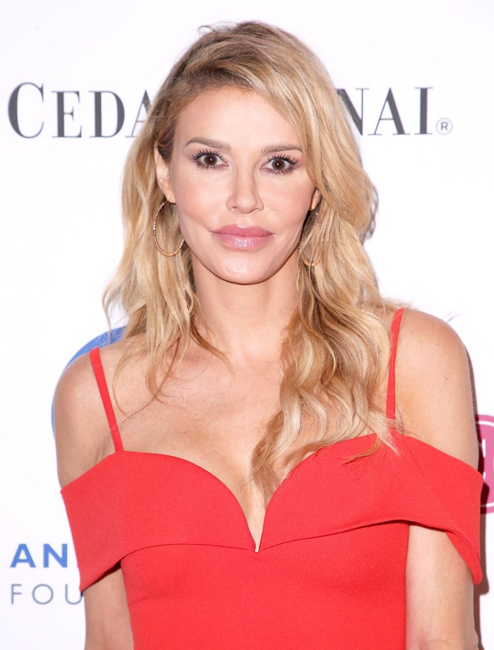 Brandi Glanville Got 'Painful' Burns After At-Home Psoriasis Treatment: Pic